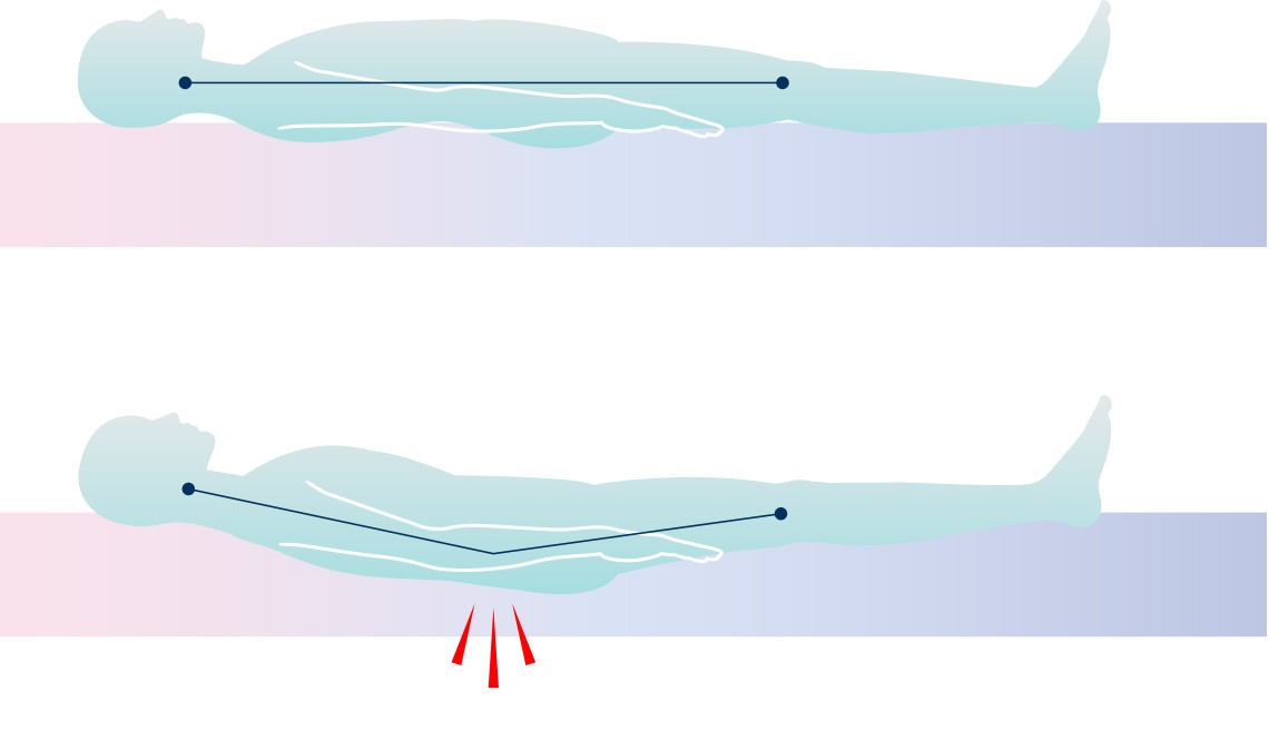 Graphic of a mattress causing a pinch point in the lower lumbar spine due to 'hammocking