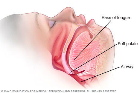 Diagram of snoring provided by the Mayo Clinic