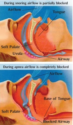 Both snoring and obstructive sleep apnea are caused by blocked airflow in the throat during sleep (image from Illinois Institute of Dental Sleep Medicine)