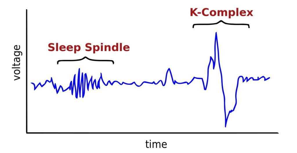 sleep spindle