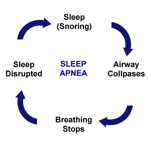 Sleep apnea progresses in a cycle of disrupted sleep throughout the night (image by Luke Mastin)