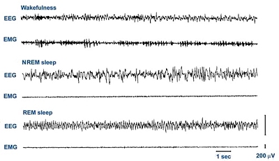 Electroencephalogram (EEG) and electromyogram (EMG) traces for different types of sleep/wakefulness (image from Scholarpedia)