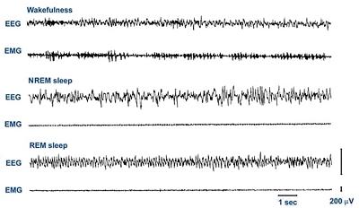 Electroencephalogram (EEG) and electromyogram (EMG) traces for different types of sleep/wakefulness