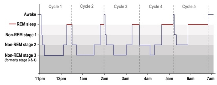 A typical hypnogram showing sleep stages and cycles in adult sleep