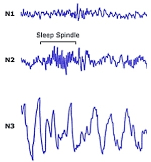 Brain wave (electroencephalogram) traces for different stages of non-REM sleep (from Healthy Sleep)