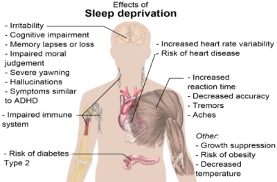 Effects of sleep deprivation (image from Wikipedia)
