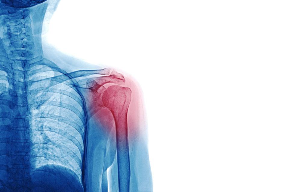 shoulder pain e1596464034906