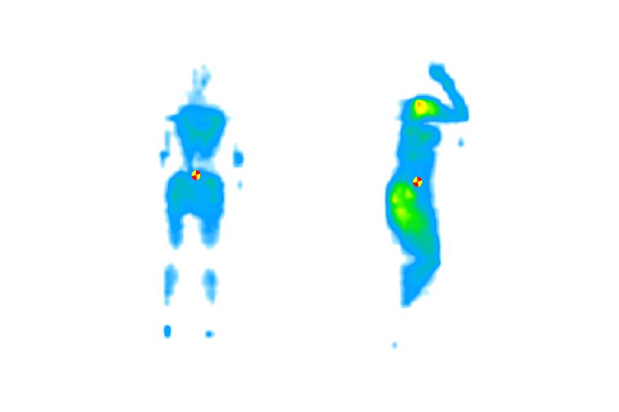 spinealign heatmap